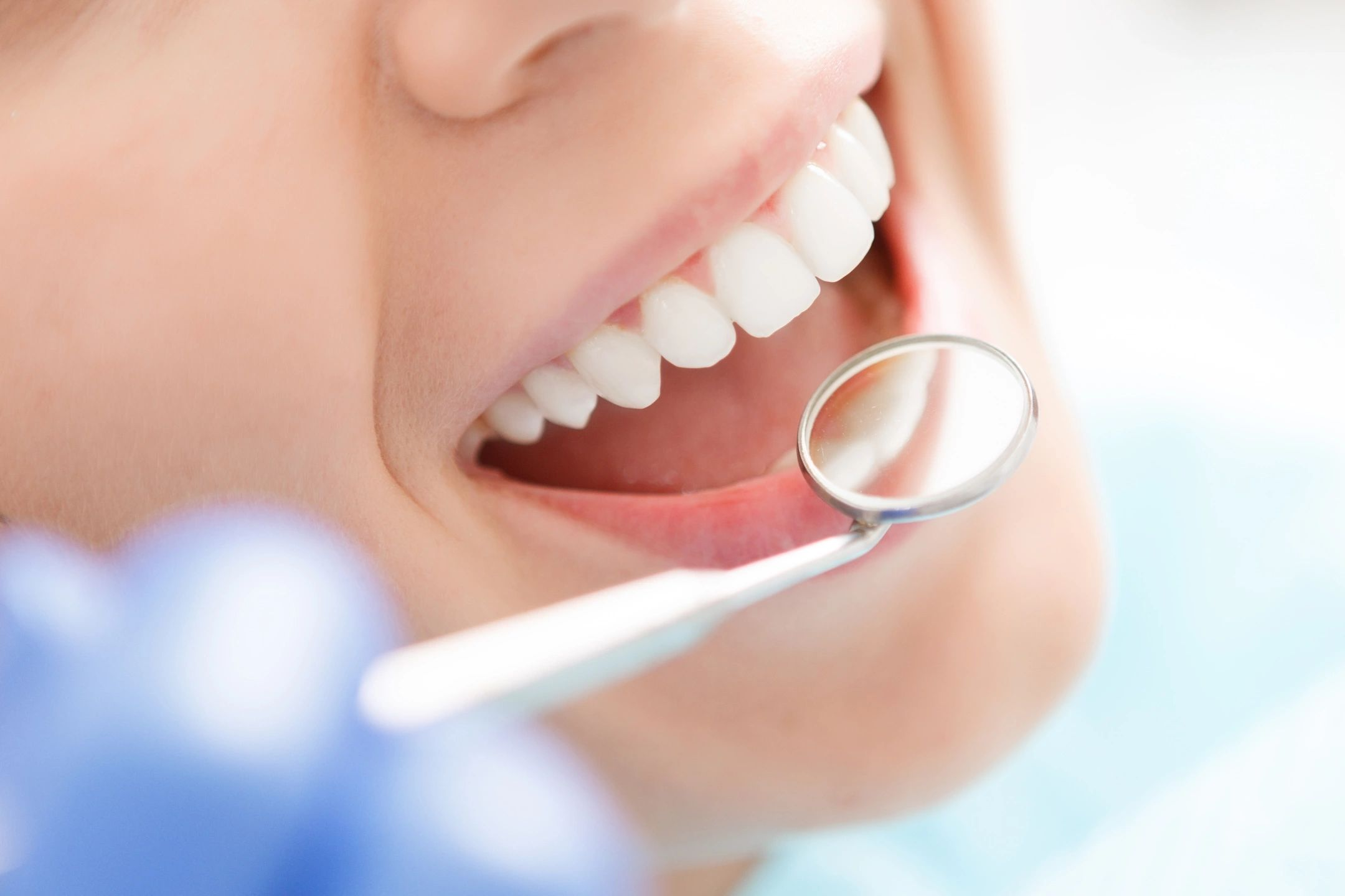 Dental Insurance Hype and Dental Costs - Are You Covered?