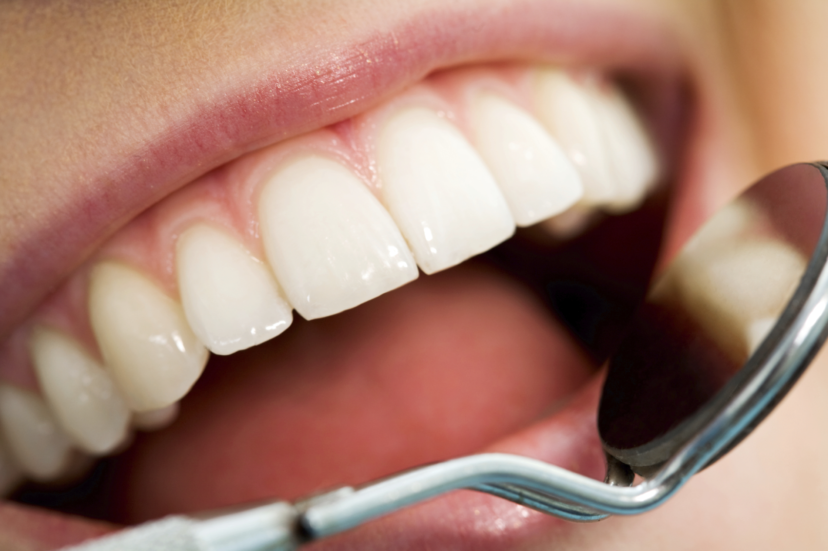 Family Discount Dental Plans - Secrets That Will Save You Money
